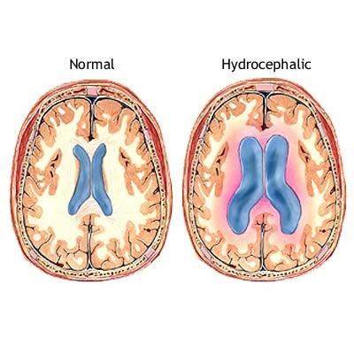 Υδροκέφαλος: Συχνά αδιάγνωστος και με παραπλανητικά συμπτώματα